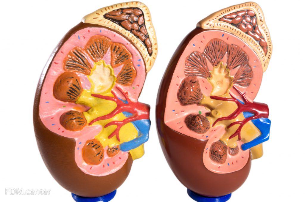 Анатомическая модель внутренних органов 3d печать